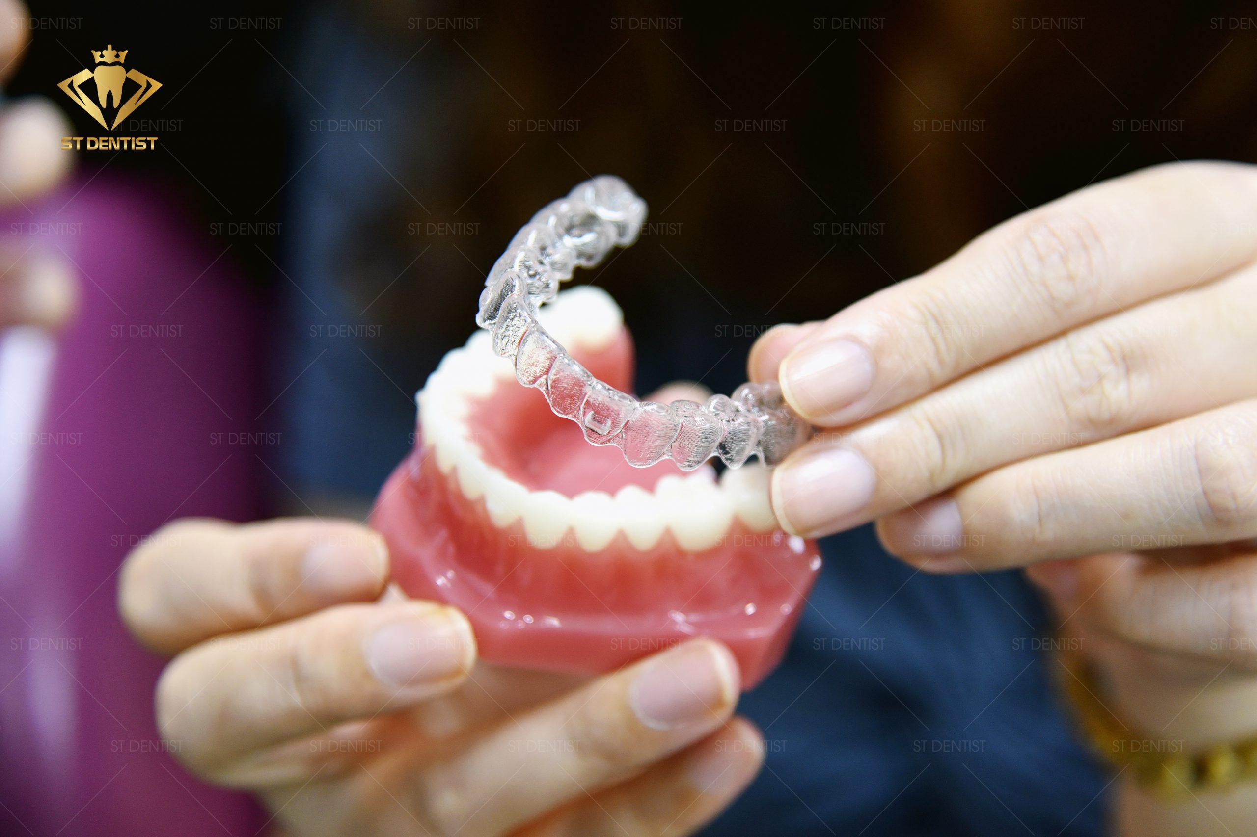 Niềng răng trong suốt