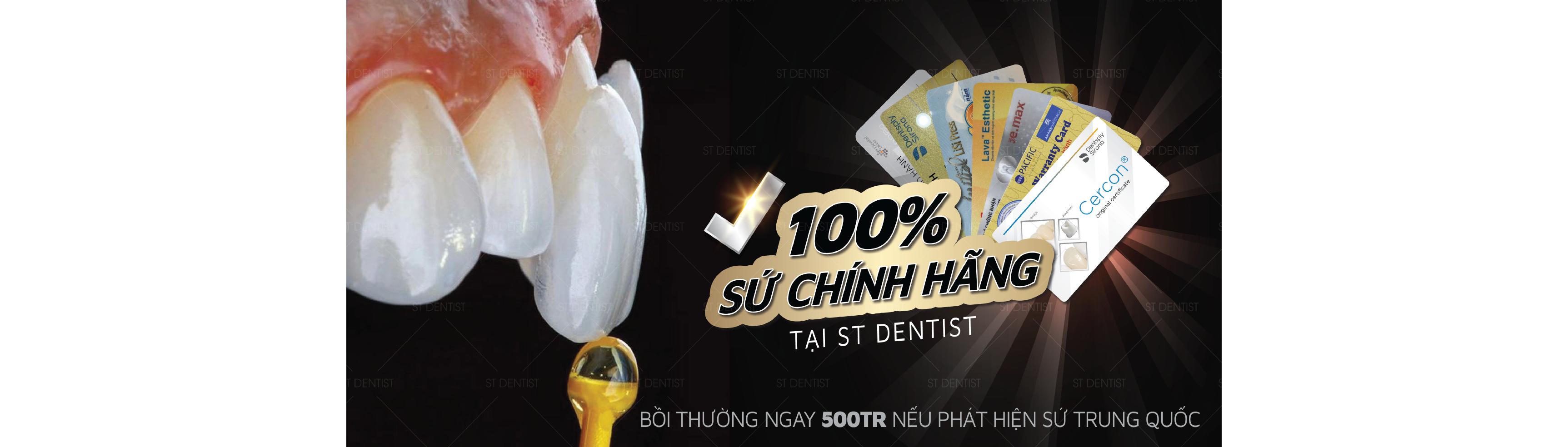 Răng sứ chính hãng