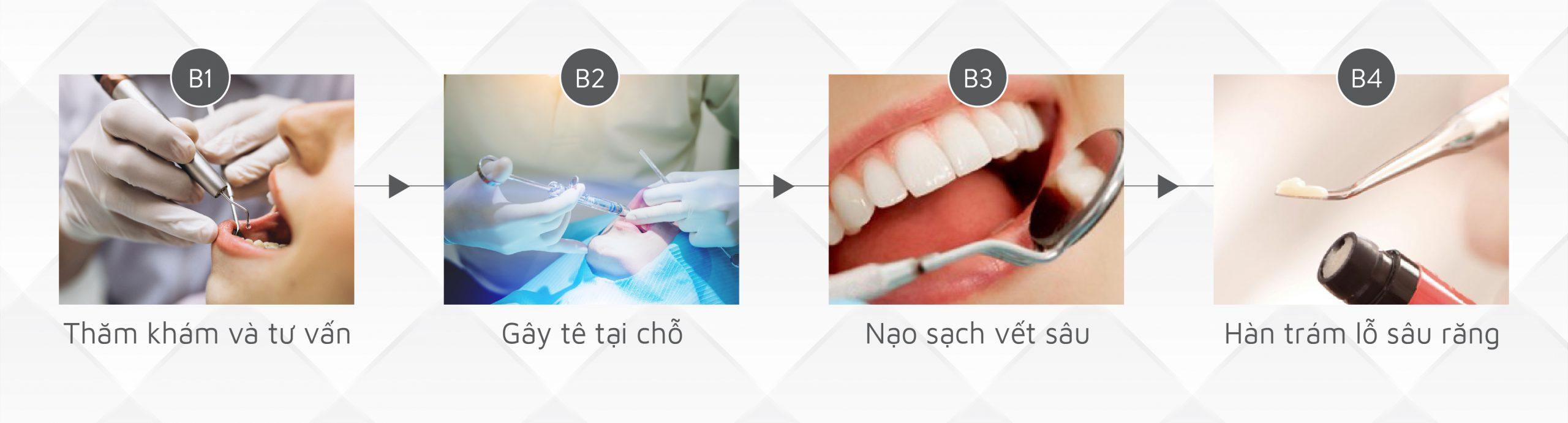 Điều trị răng sâu
