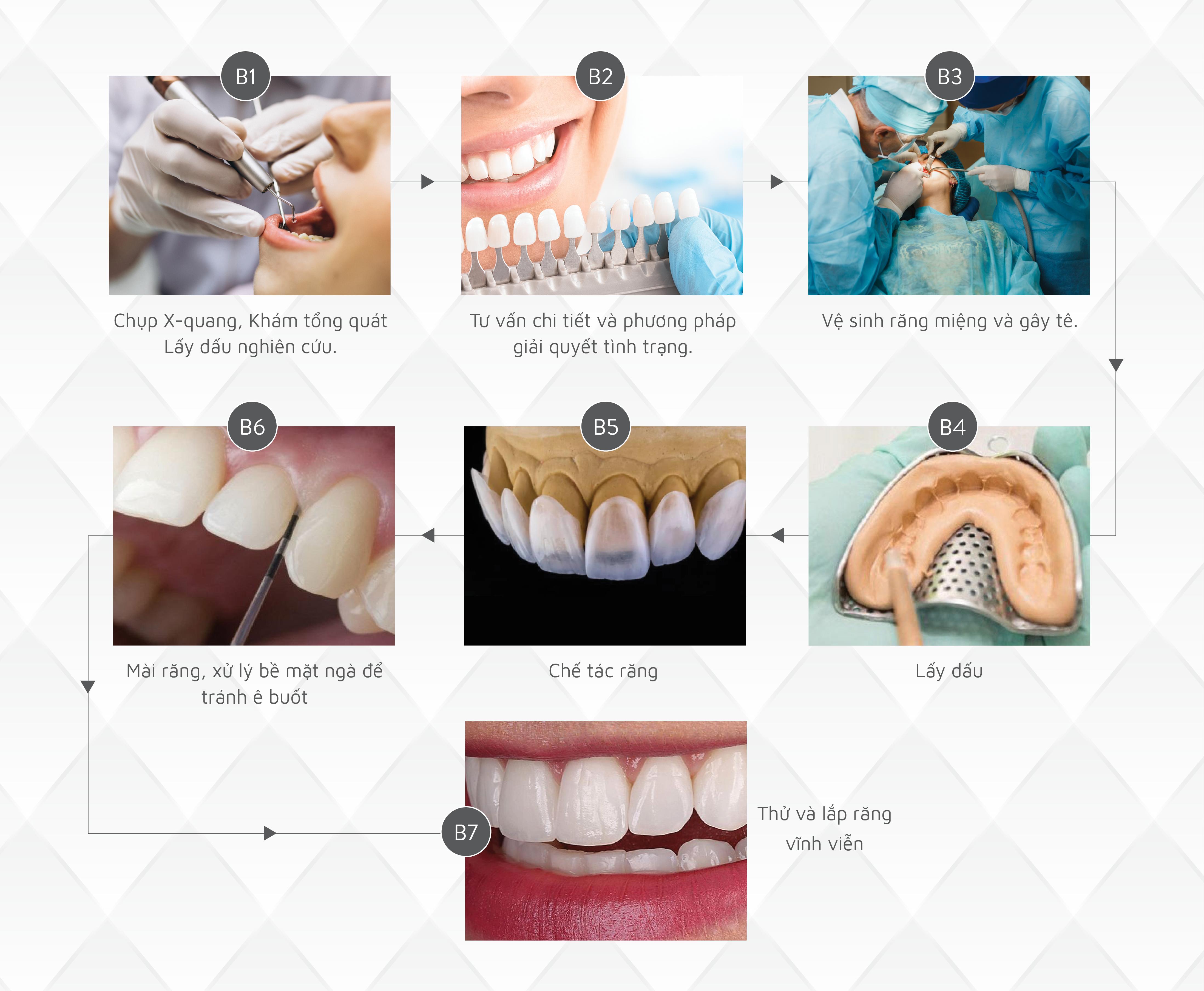 Quy trình ohur răng sứ