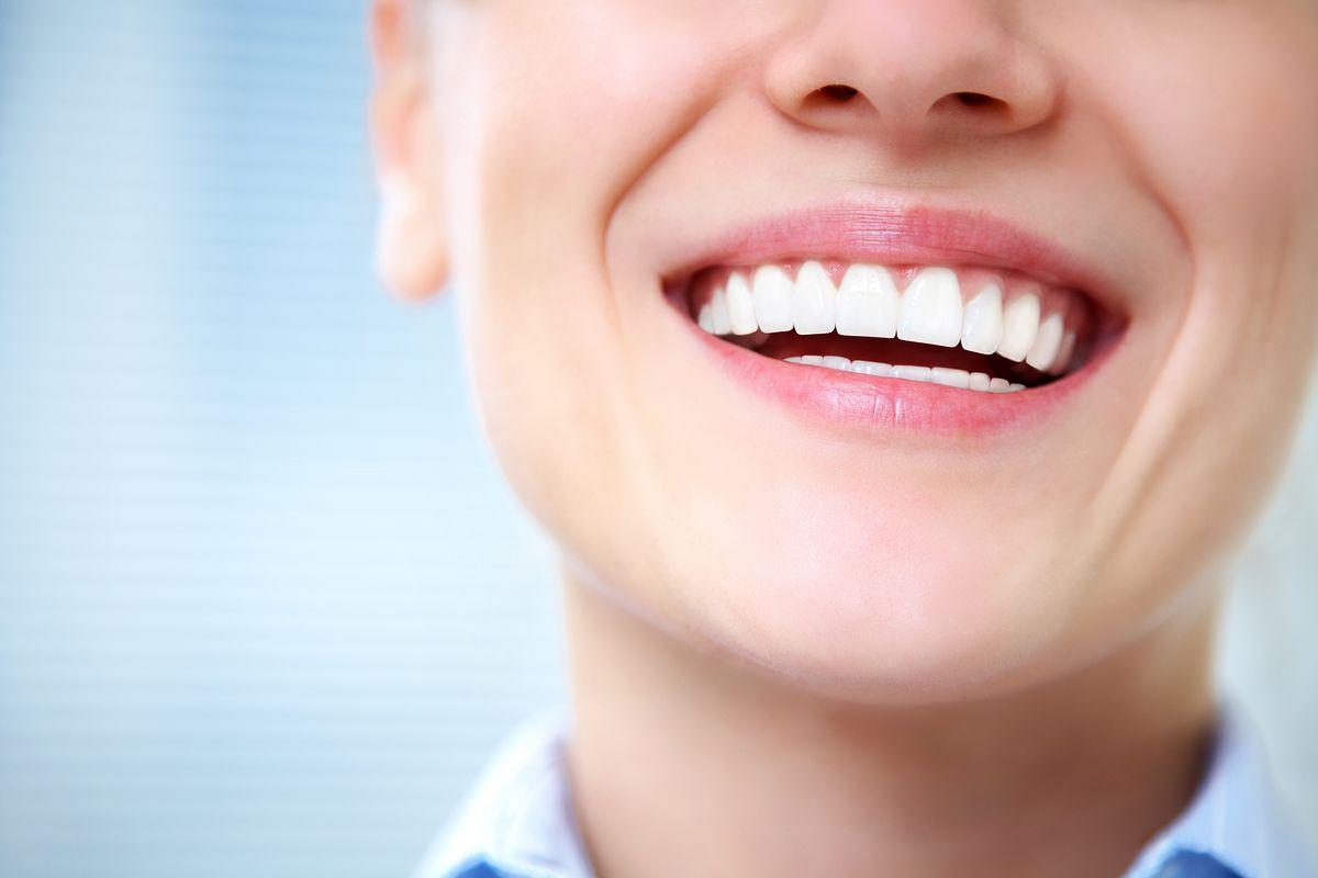 răng_toàn_sứ