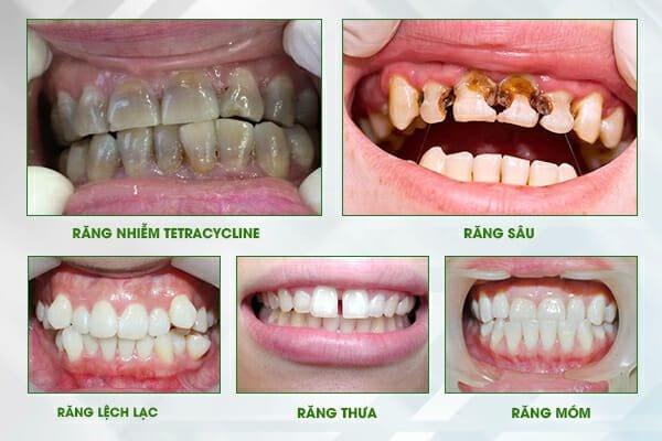 răng-toàn-sứ-CerconHT-4