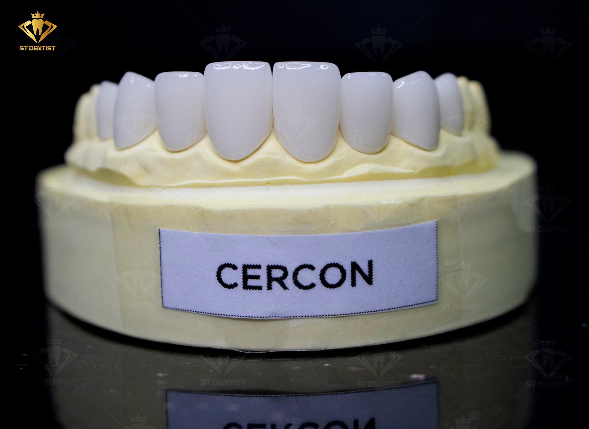 răng-toàn-sứ-CerconHT-1