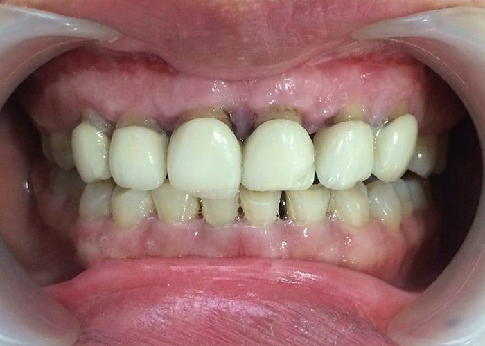 răng-sứ-kém-chất-lượng