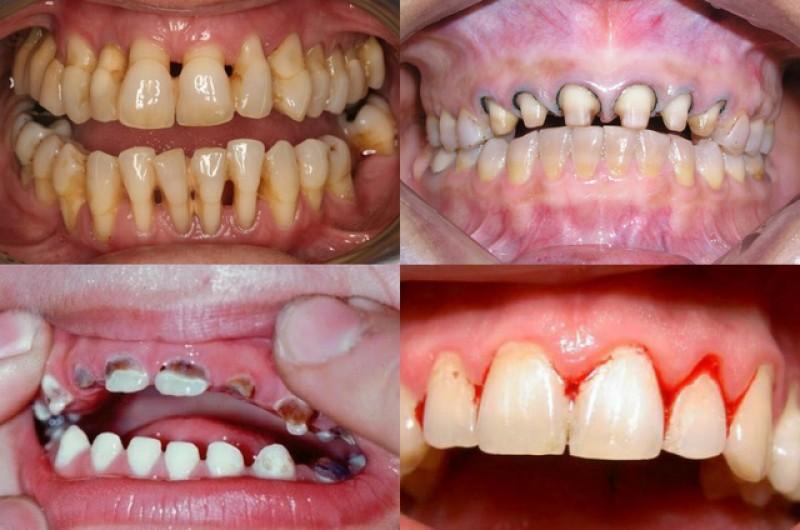 răng-sứ-kém-chất-lượng-2