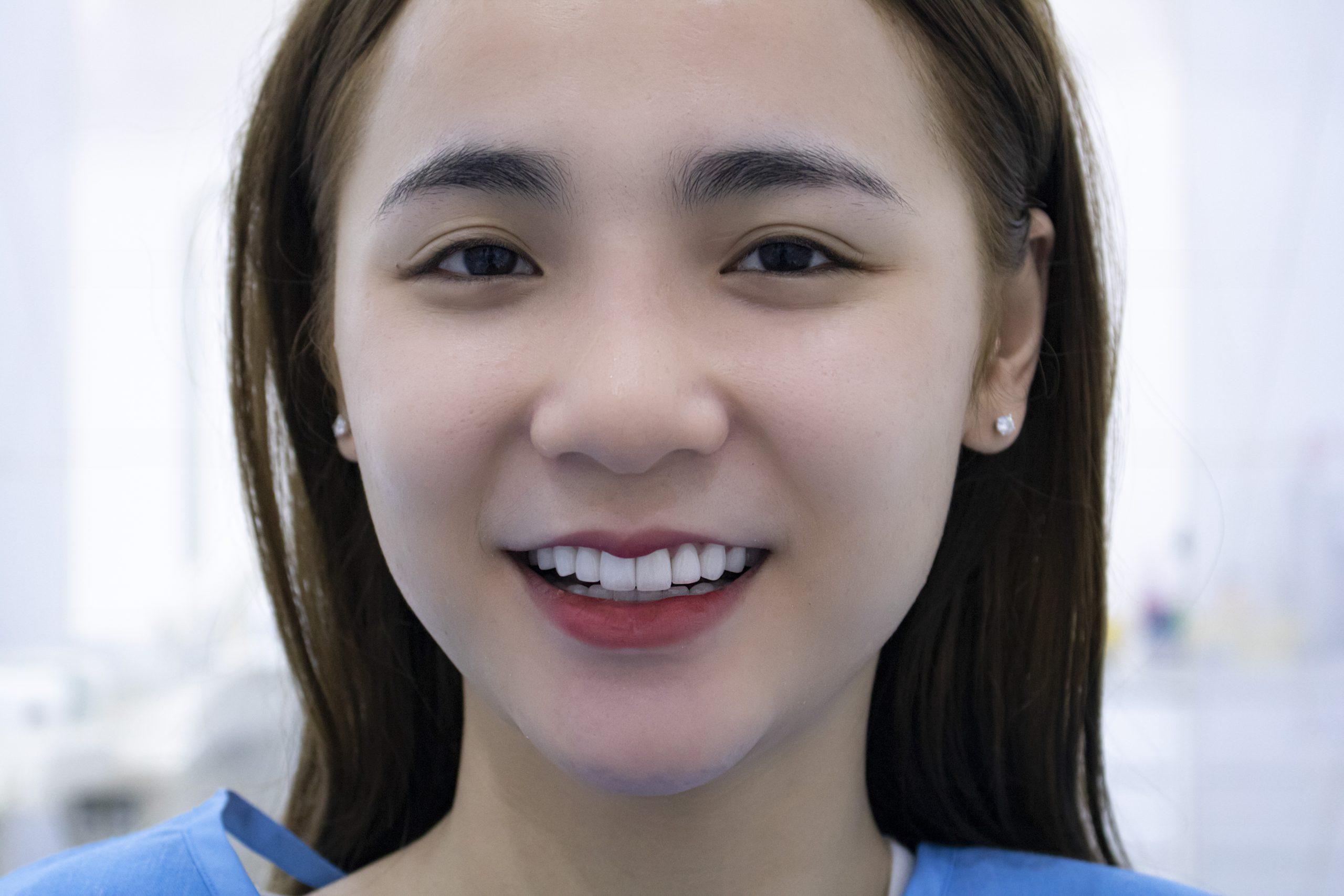răng-sứ-kém-chất-lượng-5